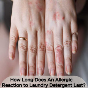 how long does an allergic reaction to laundry detergent last